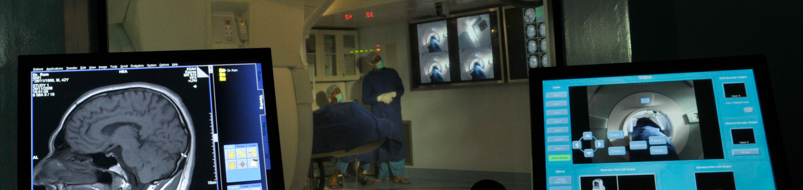 Best Epilepsy Treatment in India – Kokilaben Hospital