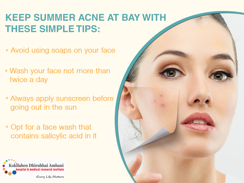 Keep summer acne at bay with these simple tips: