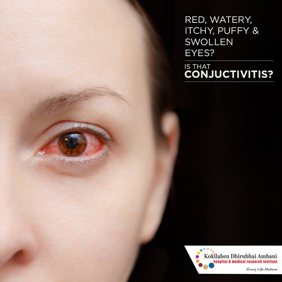 Are your eyes red, watery, itchy, puffy and swollen?