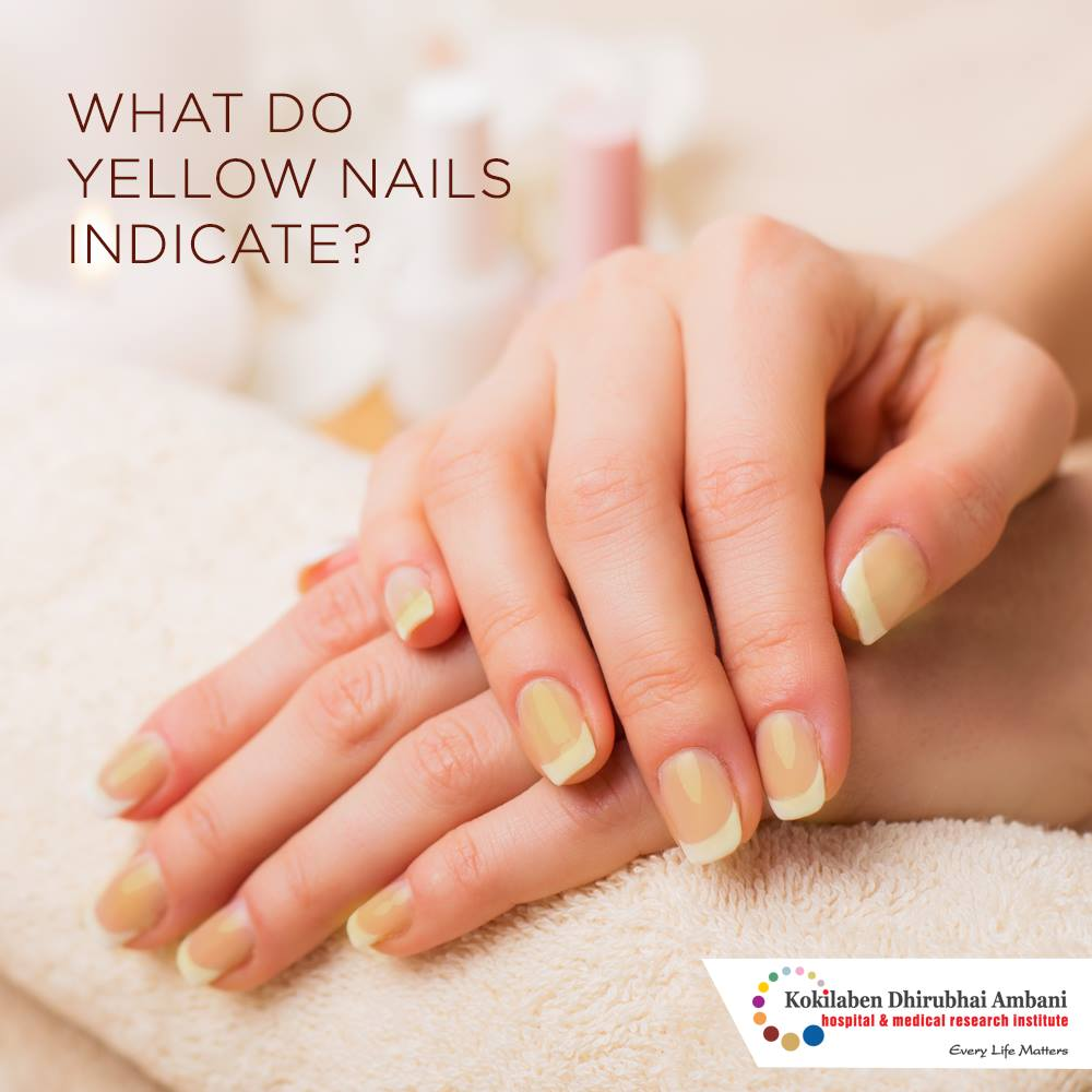 Yellow Nails can be an indication