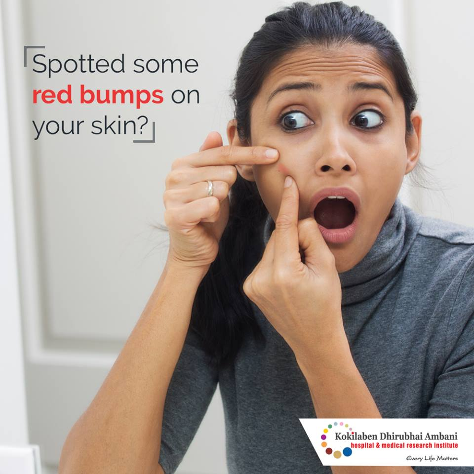Spotted some red bumps on your skin?