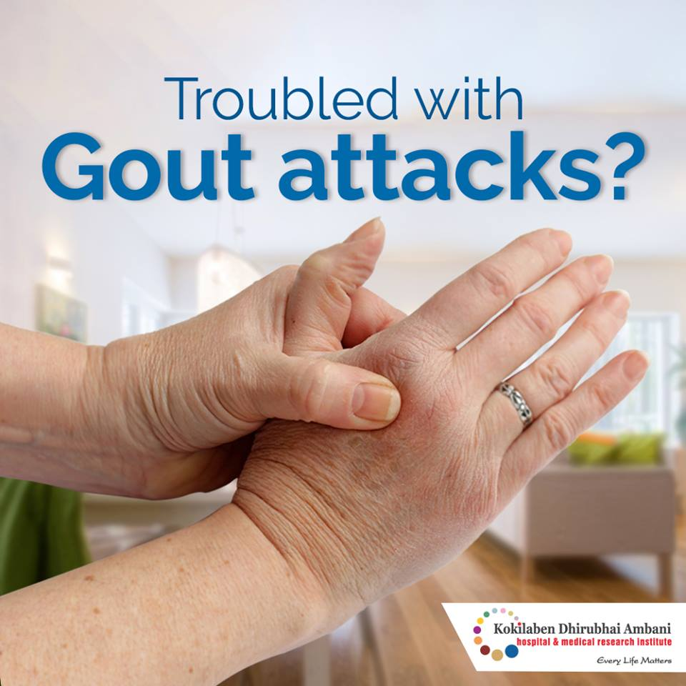 Troubled With Gout Attacks?