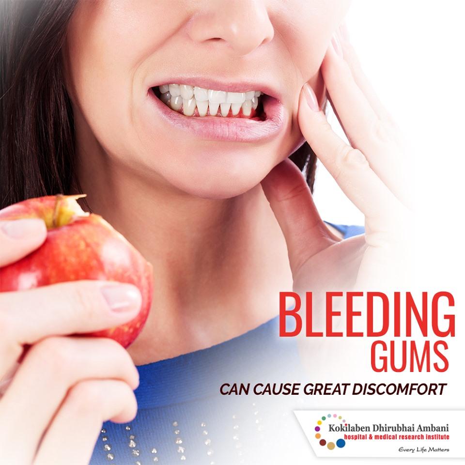 Bleeding gums can cause great discomfort
